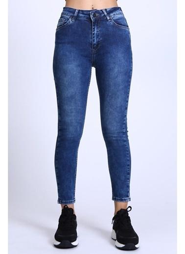 Female Project Lacivert Yıpratmalı Yüksek Bel Skinny Jeans Lacivert